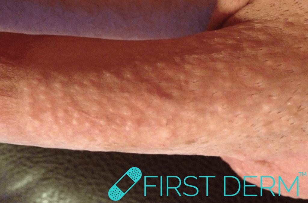 skin anal sex rash