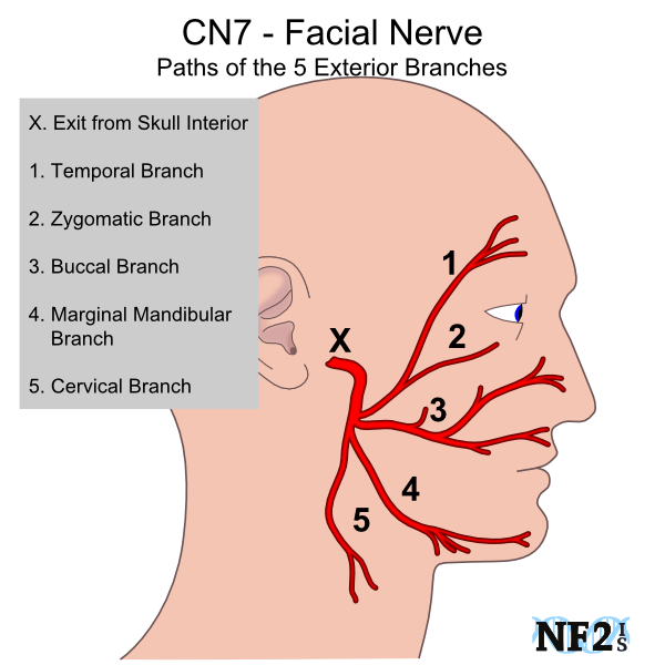 a facial nerve