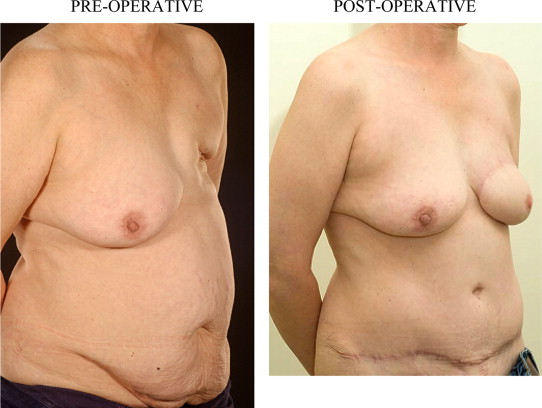 surgery delayed diep breast