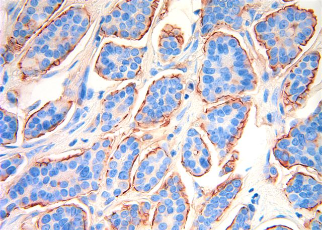 breast micropapillary features cancer focal