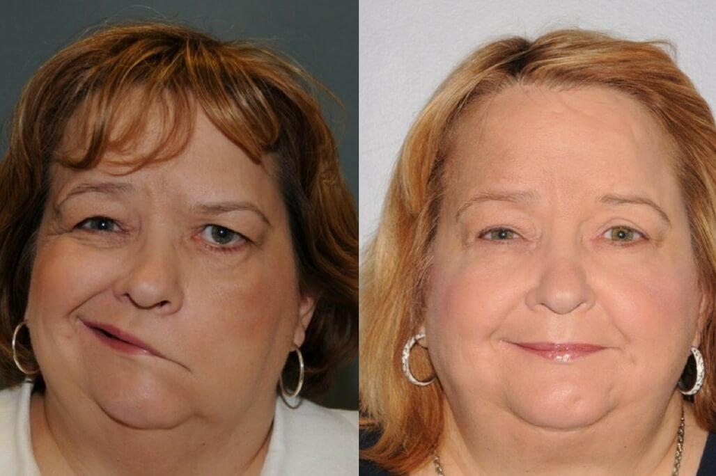 surgery facial reanimation