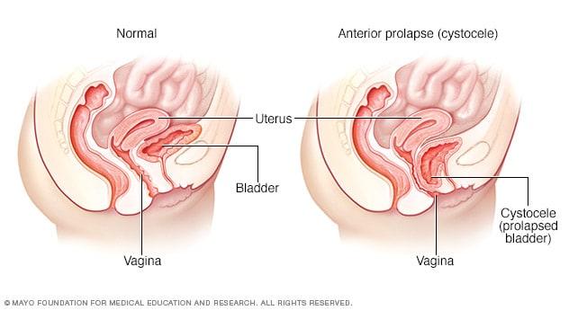 vaginal prolapse cystocele