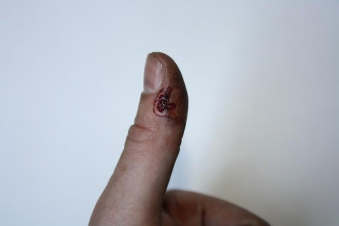 thumb gun severed