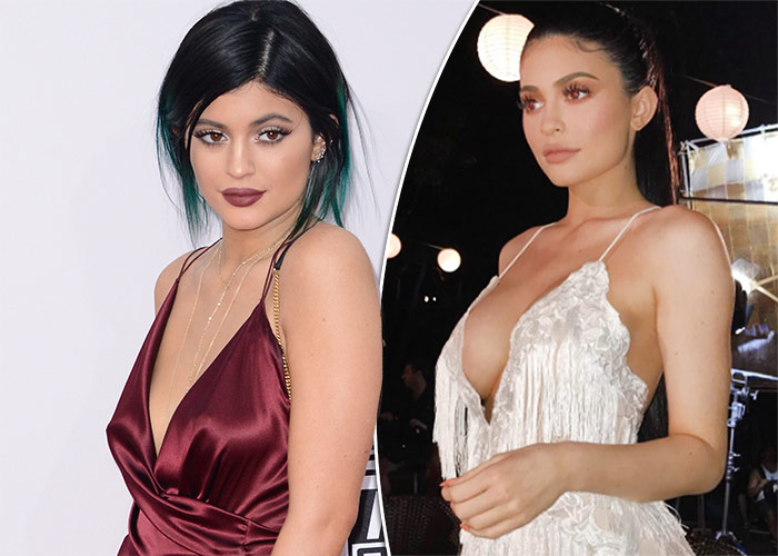 does jenner fake boobs have kylie