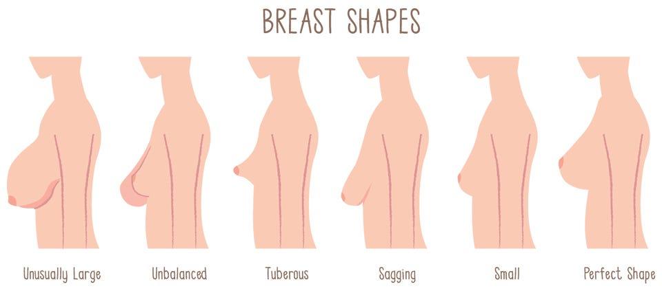 enhancment breast natural surgery